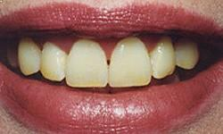 Cosmetic Dentistry In Pune Teeth Whitening Treatment